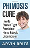 Arvin Brits Phimosis Cure: How to Stretch Tight Foreskin at Home & Avoid Circumcision (Penis Enhancement, Jelqing, Kegels, Erectile Dysfunction, ED)