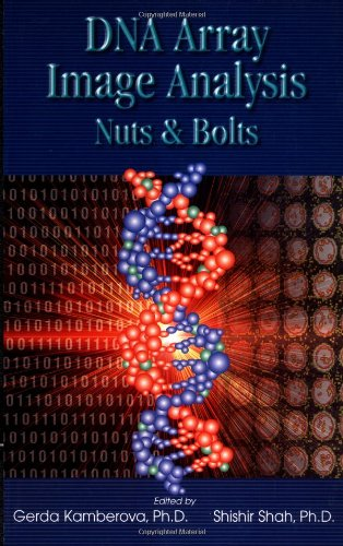 DNA Array Image Analysis: Nuts & Bolts (Nuts & Bolts series): Gerda Kamberova PhD, Shishir Shah: 9780966402759: Amazon.com: Books