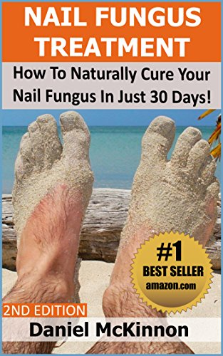 nail-fungus-treatment-how-to-naturally-cure-your-nail-fungus-in-just-30-days-2nd-edition