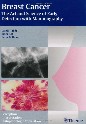 Breast Cancer - The Art and Science of Early Detection with Mammography: Perception, Interpretation, Histopathologic Cor
