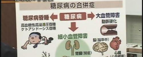 『医心伝心』生活習慣病【医療福祉チャンネル】(1WeekDVD)