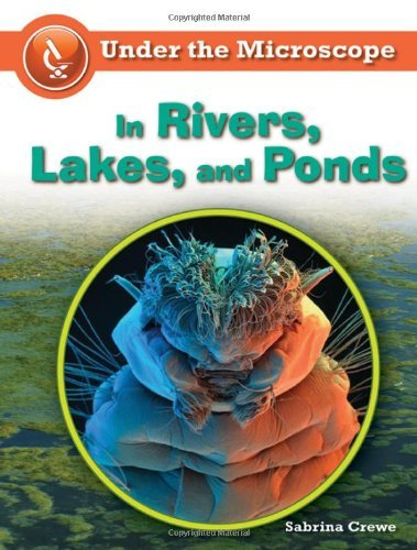 In Rivers, Lakes, And Ponds (Under The Microscope)