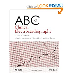 ABC of Clinical Electrocardiography ECG Free Download  51Yc7-zMDjL._BO2,204,203,200_PIsitb-sticker-arrow-click,TopRight,35,-76_AA300_SH20_OU01_