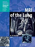 img - for MRI of the Lung (Medical Radiology) book / textbook / text book