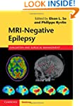 MRI-Negative Epilepsy: Evaluation and...
