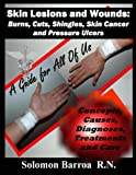 Skin Lesions and Wounds: Burns, Cuts, Shingles, Skin Cancer and Pressure Ulcer: ( Concepts, Causes, Diagnoses, Treatment and Care )