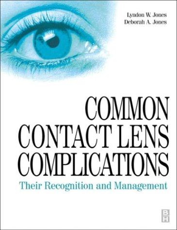 Common Contact Lens Complications: Their Recognition and Management, 1e