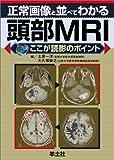 正常画像と並べてわかる頭部MRI―ここが読影のポイント