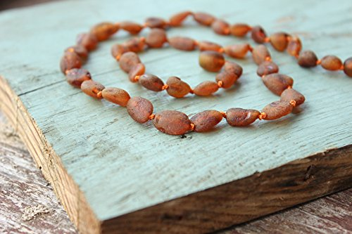 Authentic Raw Baltic Amber Necklace 17,5''
