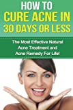 How to cure Acne in 30 Days or Less: The Most Effective Natural Acne Treatment and Acne Remedy for Life (Acne, Acne Cure, Cure Acne, Acne Remedy, Acne ... How To Cure Acne, Acne Removal, Skin Care)