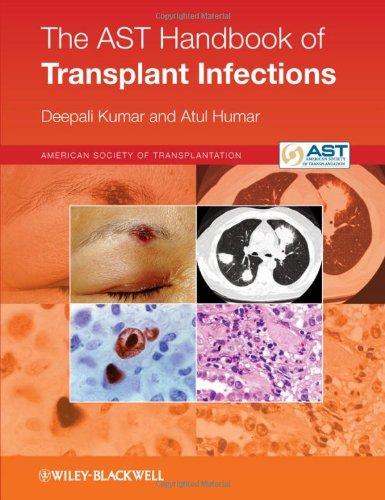 Dr. Atul  Humar Publication