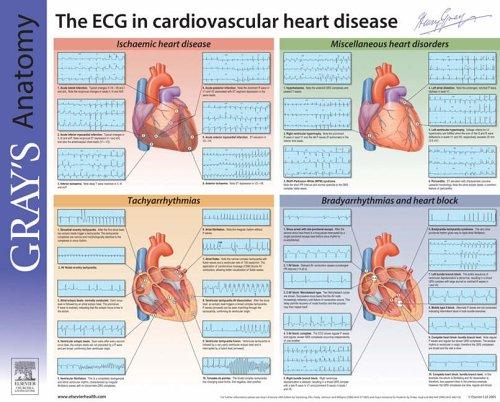 Understanding the ECG: Gray's Anatomy Poster Series, 1e
