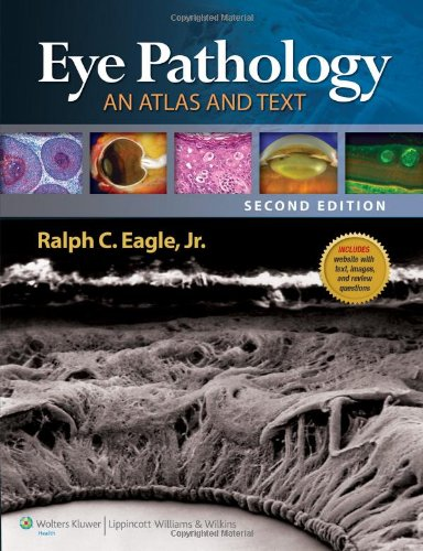 Eye Pathology: An Atlas And Text