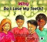 Why Do I Lose My Teeth?
