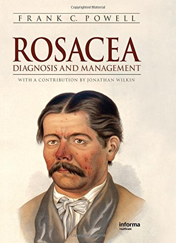 Rosacea: Diagnosis and Management