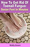 How To Get Rid Of Toenail Fungus : Sexier Feet In Minutes