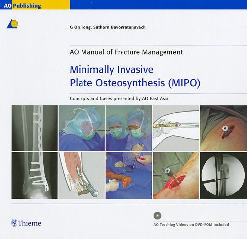 Minimally Invasive Plate Osteosynthesis (MIPO)