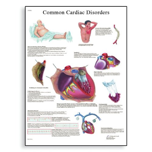 3B Scientific Glossy Paper Common Cardiac Disorders Anatomical Chart - 1