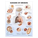 Dangers of Smoking Anatomical Chart