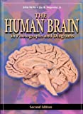 img - for The Human Brain: in Photographs and Diagrams by John Nolte PhD<br>PhD (2000-06-15) book / textbook / text book