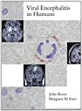 John Booss Viral Encephalitis in Humans