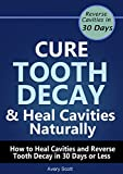 Cure Tooth Decay & Heal Cavities Naturally: How to Heal Cavities and Reverse Tooth Decay in 30 Days or Less
