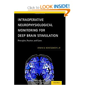Intraoperative Neurophysiological Monitoring for Deep Brain Stimulation: Principles, Practice and Cases 51bguqy-QYL._BO2,204,203,200_PIsitb-sticker-arrow-click,TopRight,35,-76_AA300_SH20_OU01_