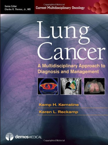 Lung Cancer: A Multidisciplinary Approach To Diagnosis And Management (Current Multidisciplinary Oncology)