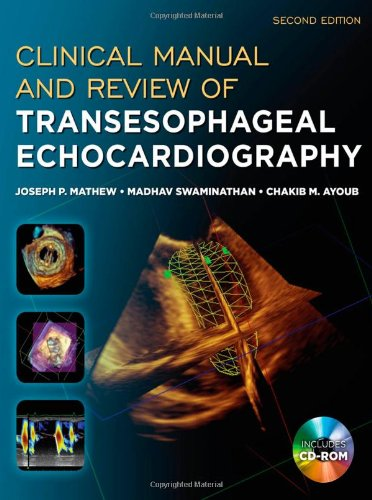Clinical manual and review of transesophageal echocardiography clinical manual and review of transesophageal echocardiography second edition fandeluxe Choice Image