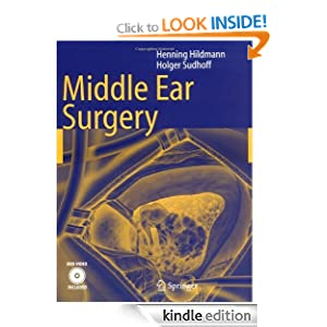 middle ear surgery ebook henning hildmann holger sudhoff