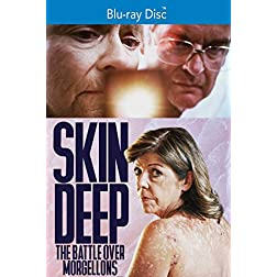 Skin Deep: The Battle Over Morgellons [Blu-ray]