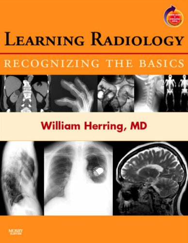 Learning Radiology: Recognizing the Basics (With STUDENT...