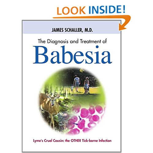 The Diagnosis and Treatment of Babesia