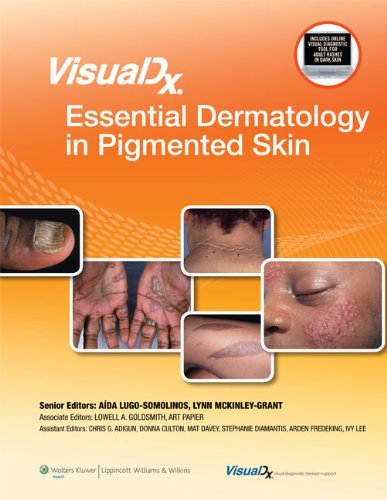 VisualDx: Essential Dermatology in Pigmented Skin (VisualDx: The Modern Library of Visual Medicine) From LWW