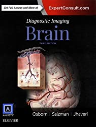 Diagnostic Imaging- Brain