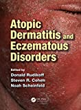 img - for Atopic Dermatitis and Eczematous Disorders book / textbook / text book