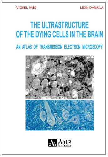 The Ultrastructure Of The Dying Cells In The Brain. An Atlas Of Transmission Electron Microscopy