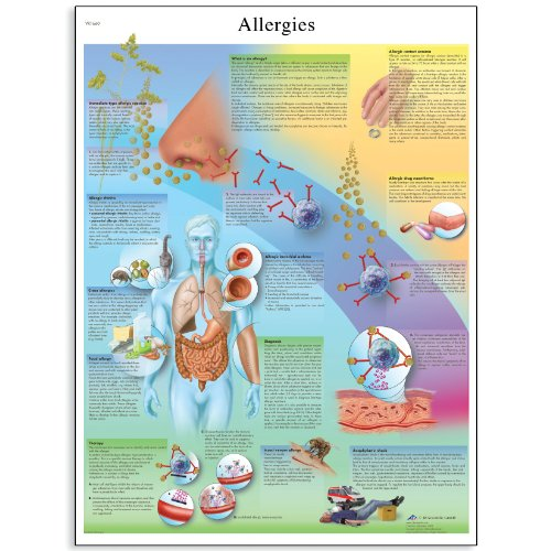 3B Scientific Glossy Paper Allergies Anatomical Chart