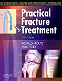 img - for Practical Fracture Treatment by Ronald McRae (2008-03-06) book / textbook / text book