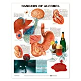 Dangers of Alcohol Anatomical Chart, Styrene Plastic