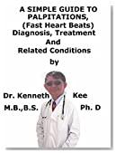 A  Simple  Guide  To  Palpitations, (Fast Heart Beats)  Diagnosis, Treatment  And  Related Conditions (A Simple Guide to Medical Conditions)