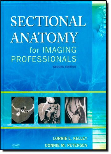Sectional Anatomy for Imaging Professionals, 2e