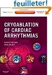 Cryoablation of Cardiac Arrhythmias