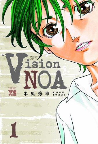 Vision NOA