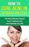 How to Cure Acne: The Most Effective Natural Acne Treatment and Acne Remedy for Life (Acne Cure, Cure Acne, Acne Remedy, Acne Treatment, Acne, How To Cure Acne, Acne Removal, Skin Care)