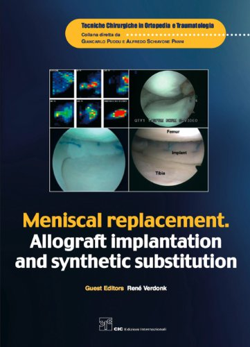 René Verdonk - Meniscal replacement. Allograft implantation and synthetic substitution (Tecniche Chirurgiche in Ortopedia e Traumatologia)