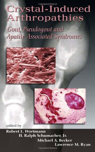 Crystal-Induced Arthropathies: Gout, Pseudogout And Apatite-Associated Syndromes