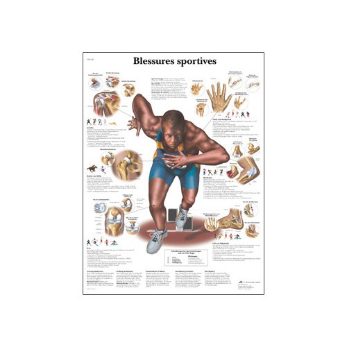 3B Scientific Glossy Paper Sports Injuries Anatomical Chart