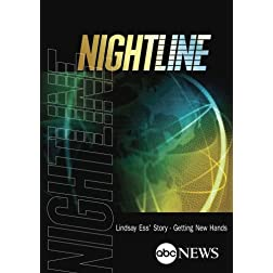NIGHTLINE: Lindsay Ess' Story - Getting New Hands: 1/4/13