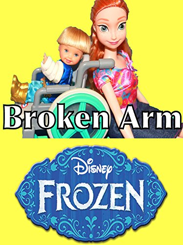 Disney Frozen Toby Broken Arm Play-Doh Disney Princess Anna Barbie Doctor Kids Toys